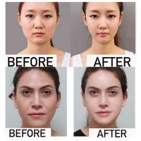 v-slimming-mask-transformation